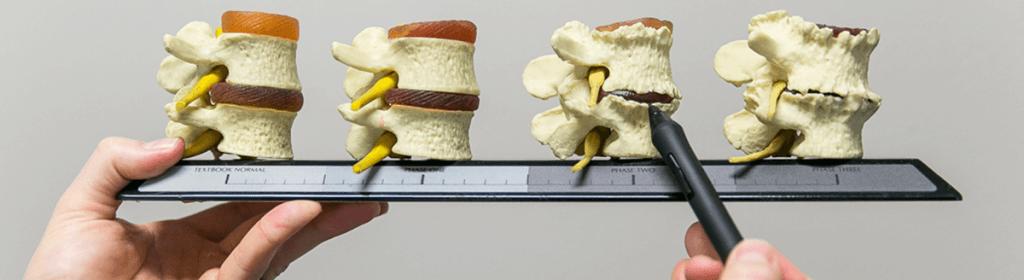 spine degeneration stages